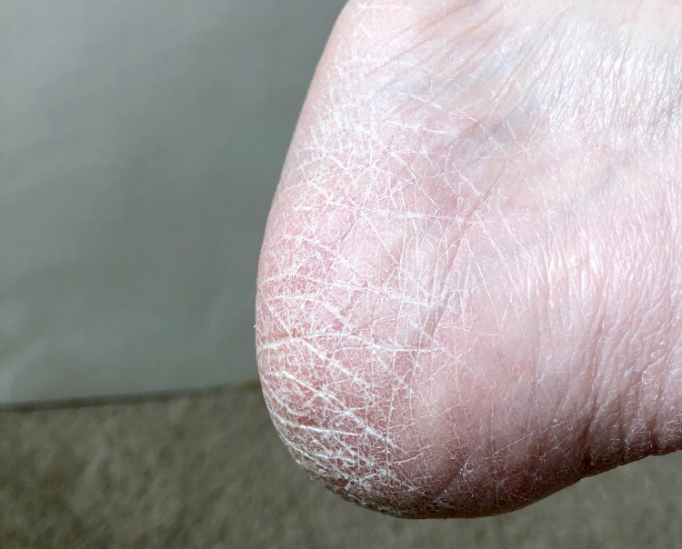 dry skin on heel of foot